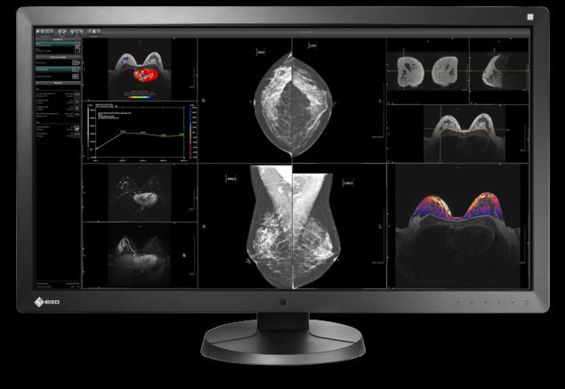 Medisinske skjermer